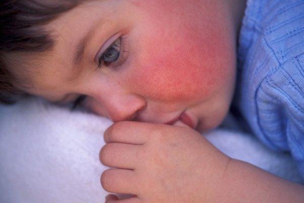Ребенок, болеющий скарлатиной