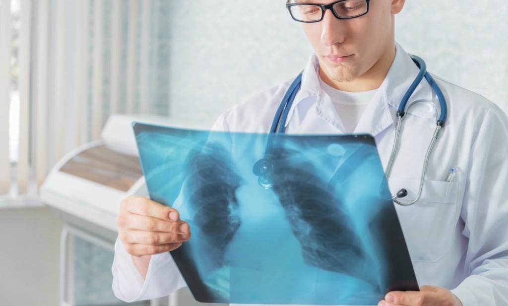 Рентген позволяет максимально точно диагностировать заболевание