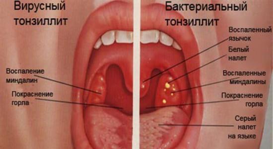как распознать вирусный тонзиллит