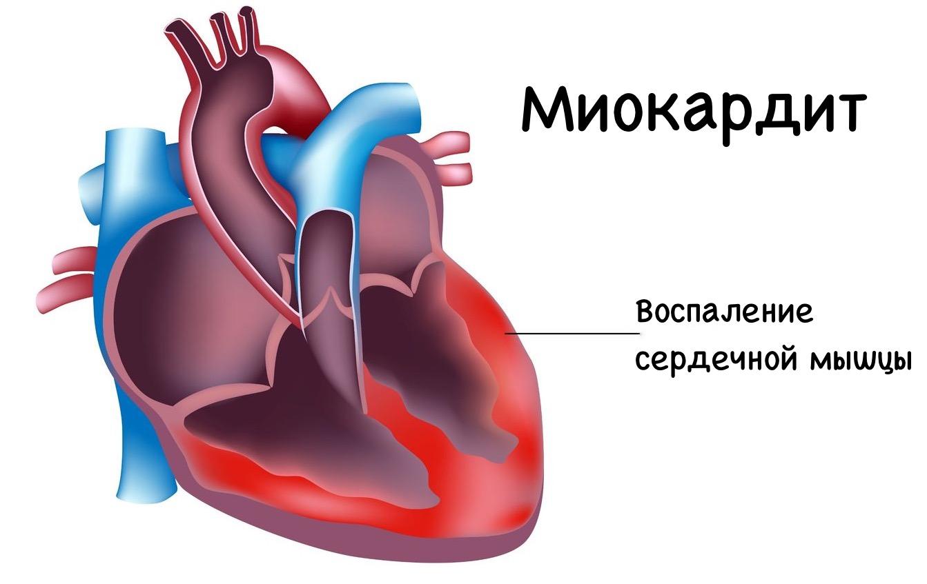 миокардит от мононуклеоза фото