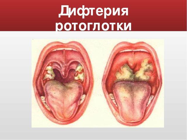 Difteriya rotogldki foto