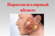 Паратонзиллит: в чем опасность заболевания