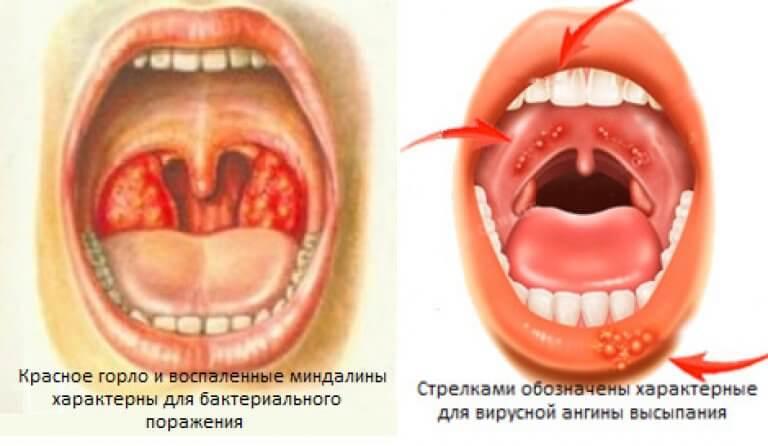 герпетическая ангина чем лечить ФОТО
