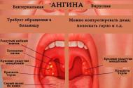 Особенности симптоматики и лечения герпетической ангины