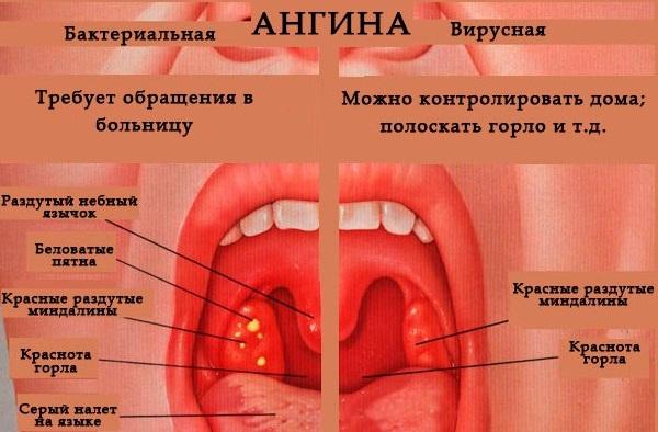 вирусная герпетическая ангина ФОТО